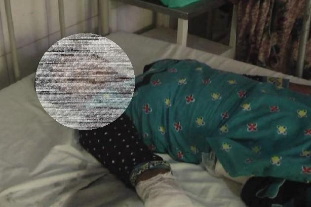 કચ્છમાં ચાર સંતાનોની માતા પર એસિડ હુમલો,પાંચ વર્ષથી કરતો હતો પરેશાન